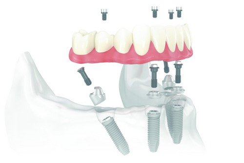 All-on-4™ Treatment Concept Sun City West - Diagram with Fixed Dentures