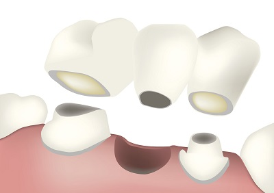 When Is It Time to Consider a Dental Bridge?
