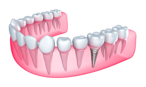 Does Bleeding Persist for a Long Time Following Dental Implants?