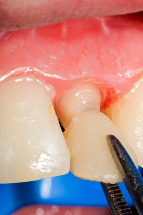 Extend the life of dental bonding by contacting Frank W. Sallustio DDS, MS, FACP.