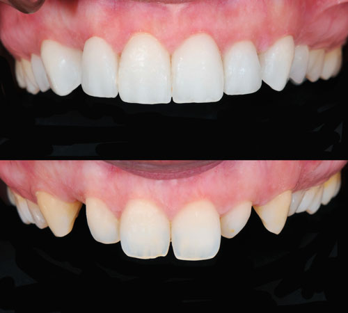 A before and after image of a patients teeth suffering from peg lateral incisor.