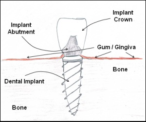 A diagram of how a dental implant works.