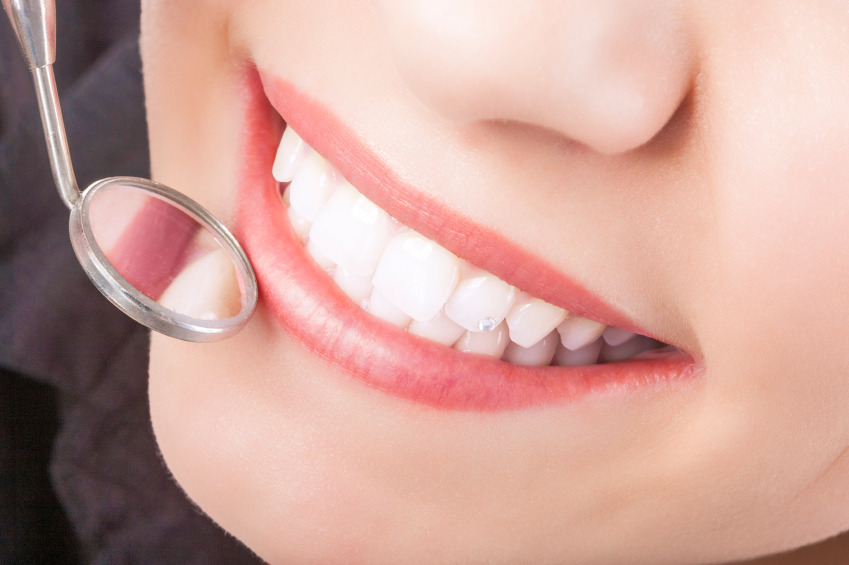 Dental Bonding Needs Special Care to Keep Looking Like New
